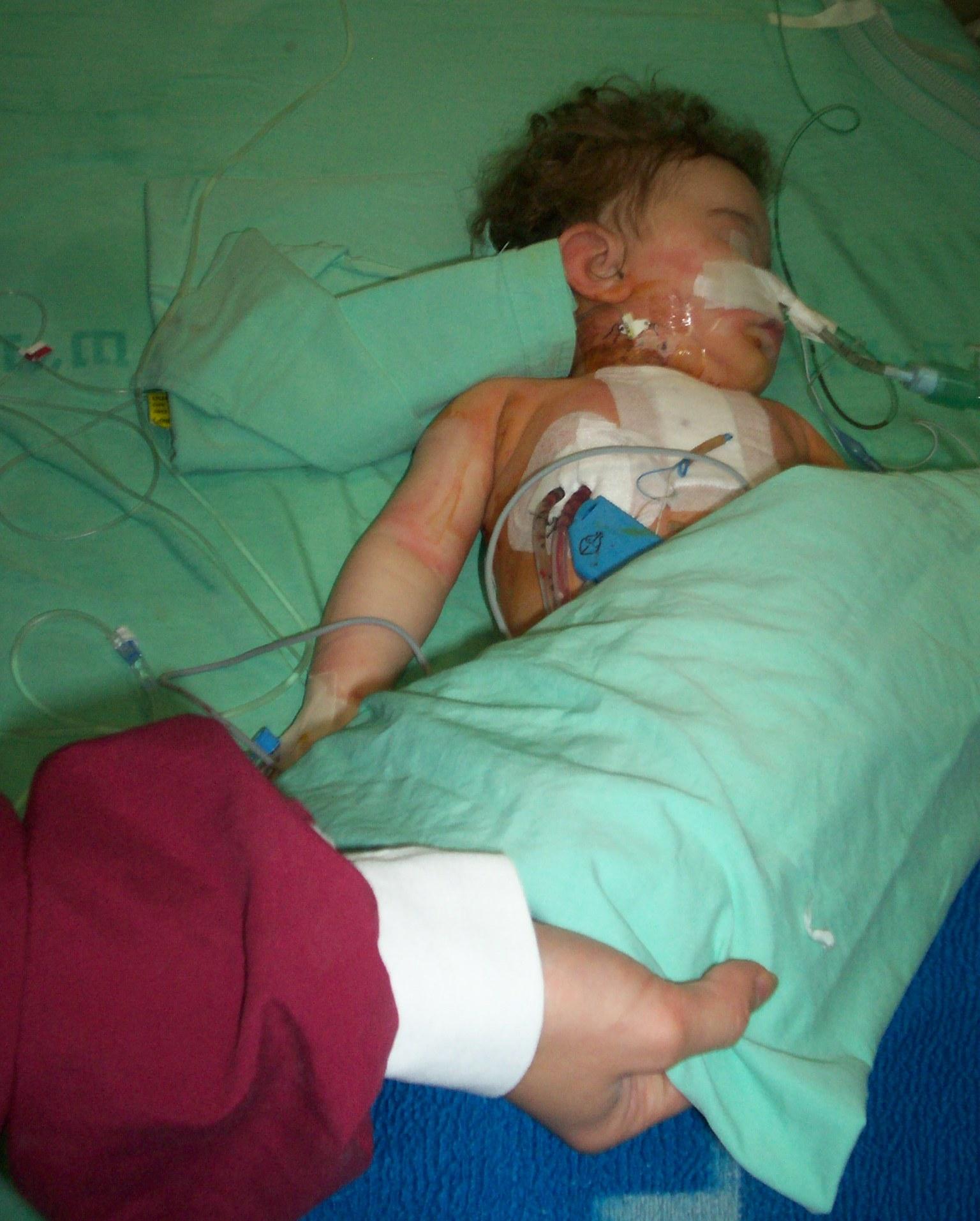 Copil operat pe cord