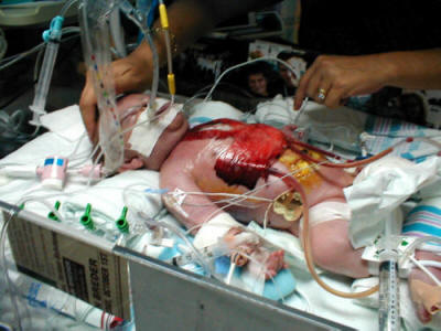 Bebelus care a fost operat pe cord