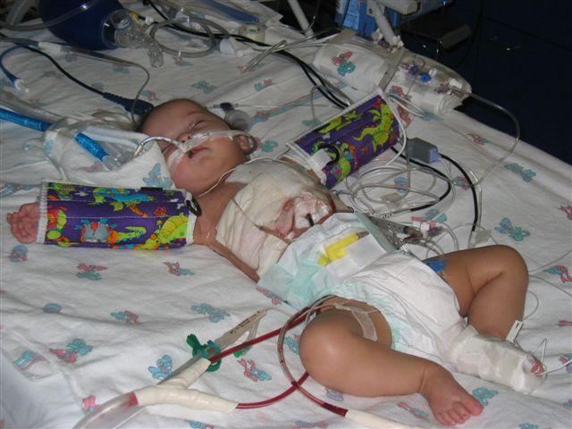 Un bebe dupa operatia pe cord